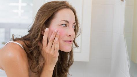 Jak leczyć trądzik różowaty grudkowo krostkowy?